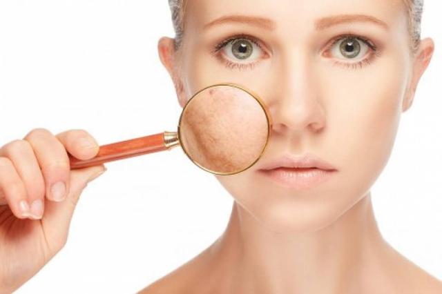 Detox para la piel: Señales que tu rostro necesita uno y cómo hacerlo
